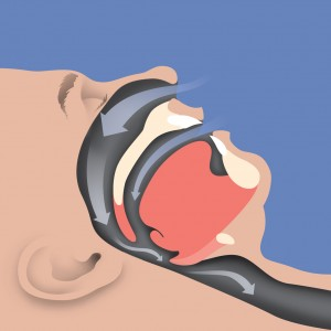 Sleep Apnea- Constricted Airway