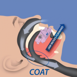 Sleep Apnea- Open Airway